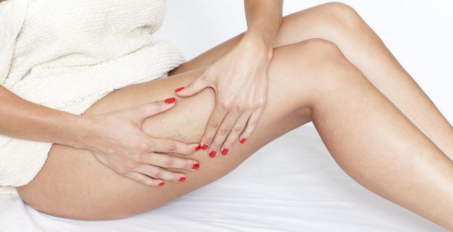 corpo donna gambe cellulite