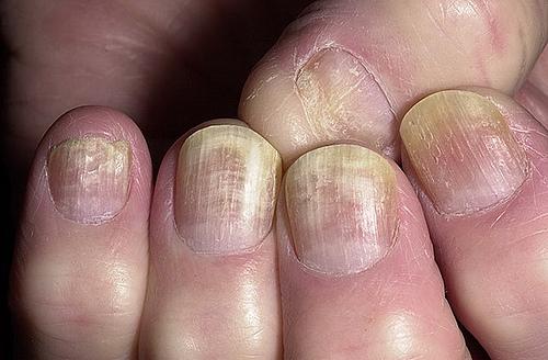 unghie rovinate micosi brutte