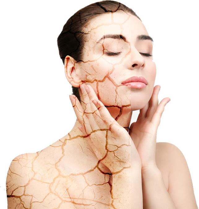 pelle secca donna rimedi cura trattamento inverno