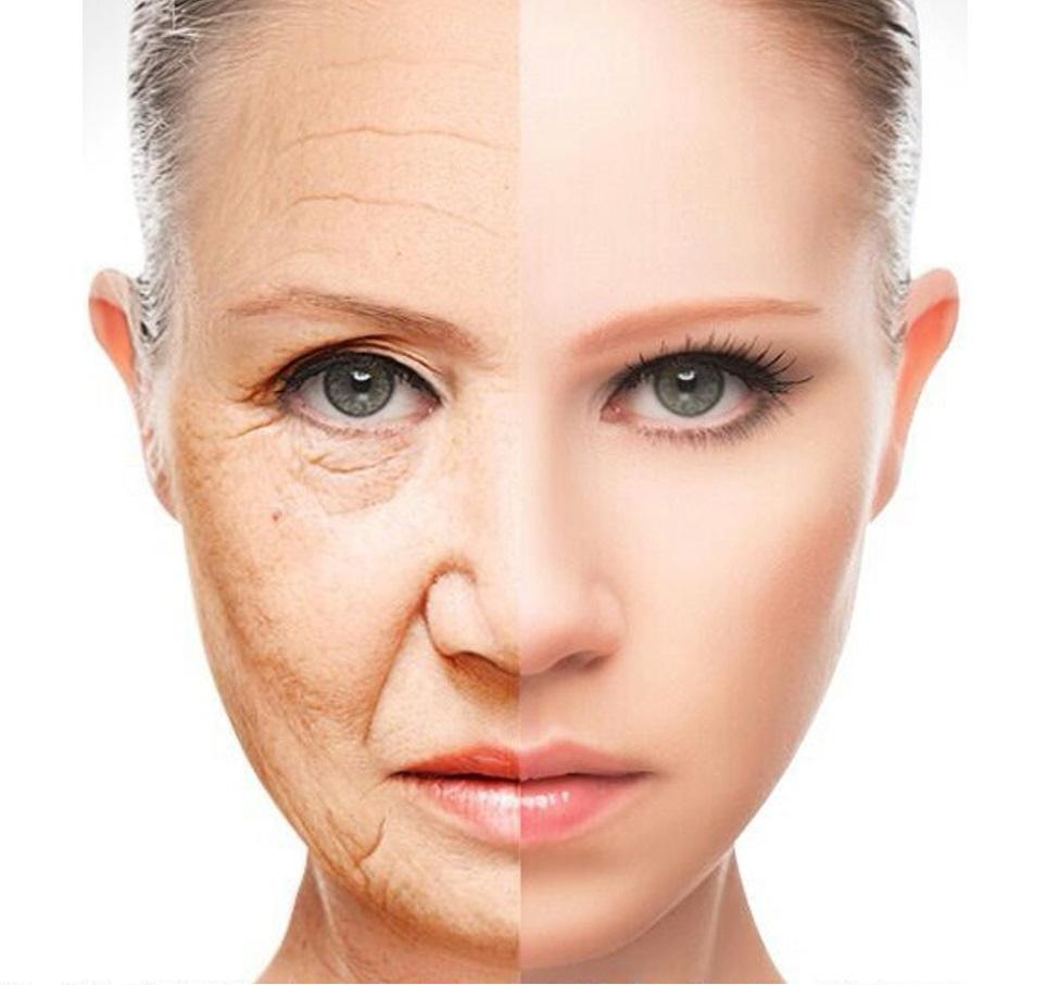 rughe invecchiamento anti-invecchiamento prima e dopo