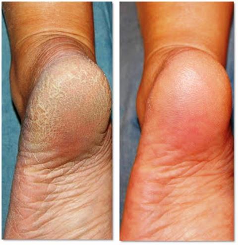 talloni piedi rovinati rimedi cura prima dopo