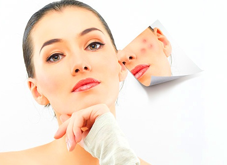 acne rimedi caratterische